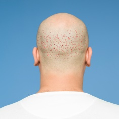 FUEstock-photo-79122007-back-view-of-bald-head_LI