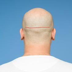 FUTstock-photo-79122007-back-view-of-bald-head_LI