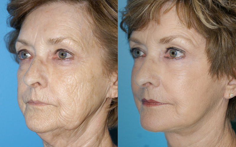 What Is Fraxel Laser Resurfacing Treatment Facial Focus